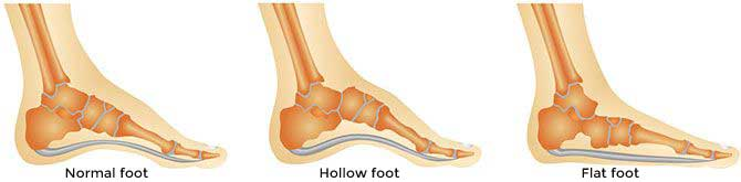flat hollow feet